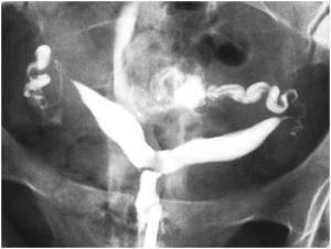 Изображение №2: Двурогая матка - что это, диагностика аномалии - ЭКО-блог