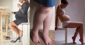 Изображение №2: Отеки при беременности - что делать, как снять - ЭКО-блог