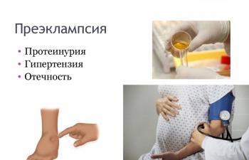Изображение №4: Отеки при беременности - что делать, как снять - ЭКО-блог