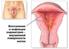 Эндометрит матки - ЭКО-блог