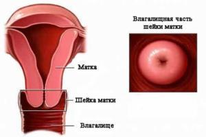 Изображение №2: Патология матки - ЭКО-блог