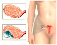 Изображение №1: Беременность с одной маточной трубой - ЭКО-блог