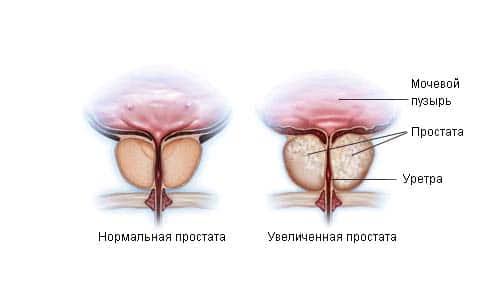 Геморрой  лечение и профилактика симптомы и признаки