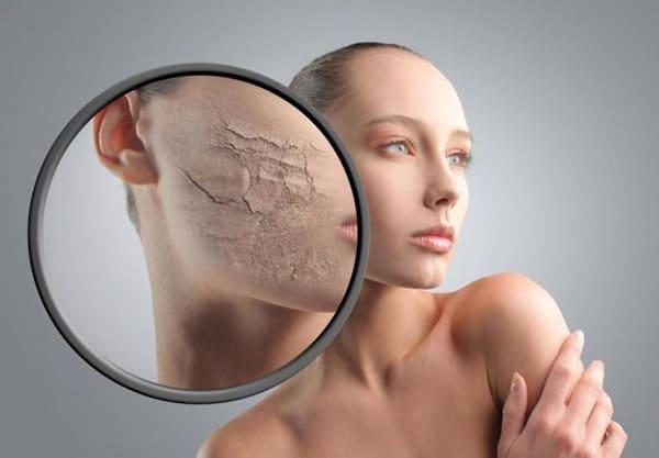 Переизбыток женских гормонов у женщин симптомы