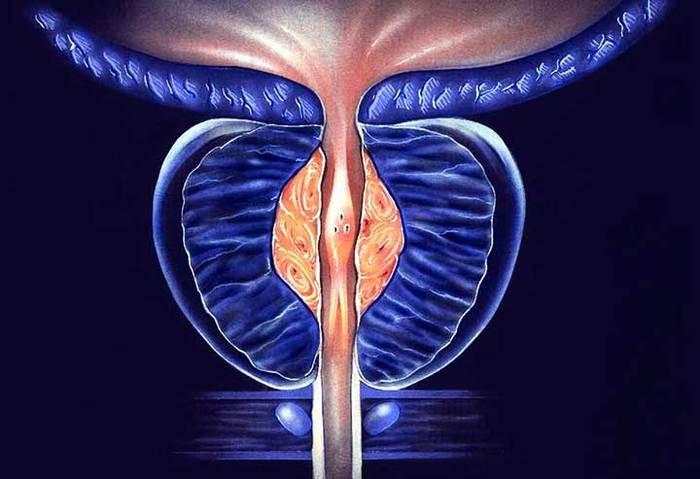 Хронический конгестивный простатита как принимать ципрофлоксацин при простатите